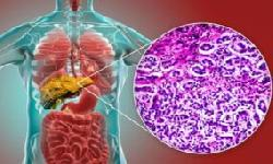 BingMag.com 11 important questions and answers about cirrhosis of the liver and how to treat it